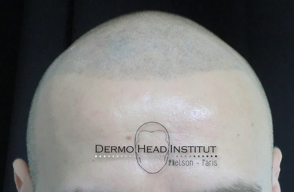 dermo-head-institut-002
