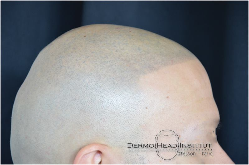 dermo-head-institut-003